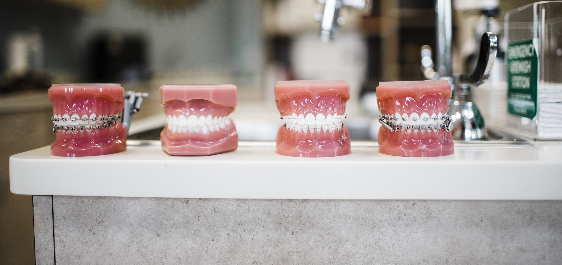 Four tooth models in a row with various styles of braces on them